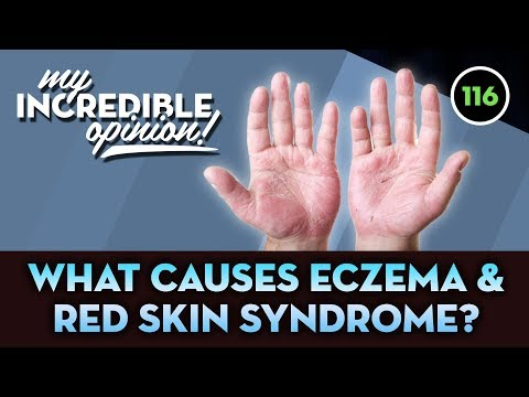 Ep116- What Causes Eczema & Red Skin Syndrome? [My Incredible Opinion]