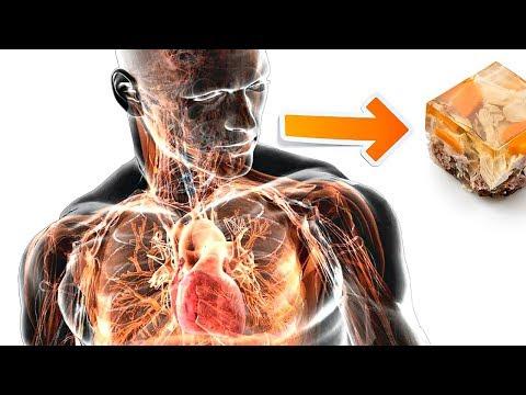 Вот что будет с организмом если кушать холодец! Польза и вред холодца для организма человека!