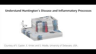 ZEISS ZEN Correlative Array Tomography: Understanding Huntington's Disease