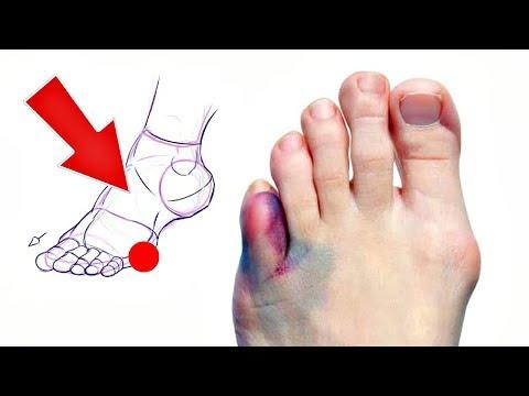 Как отличить перелом мизинца от ушиба на ноге? Как распознать перелом мизинца на ноге?