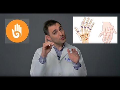 Drug That Eases Rheumatoid Arthritis Symptoms Discomfort Will not Help Osteo arthritis
