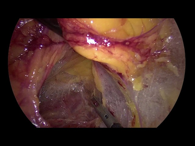 Francesco Porpiglia - Laparoscopic Retroperitoneal Nephroureterectomy