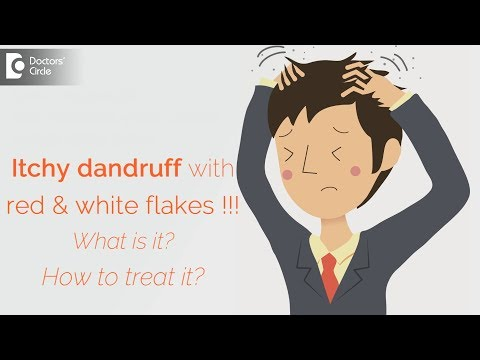 Itchy dandruff with red & white flakes !!! What is it? How to treat it? – Dr. Aruna Prasad