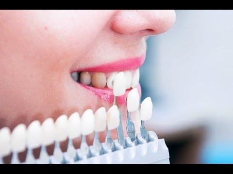 как держатся виниры на зубах