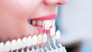 Устанавливать ли на зубы виниры. Часть 2(, 2015-07-18T15:47:27.000Z)