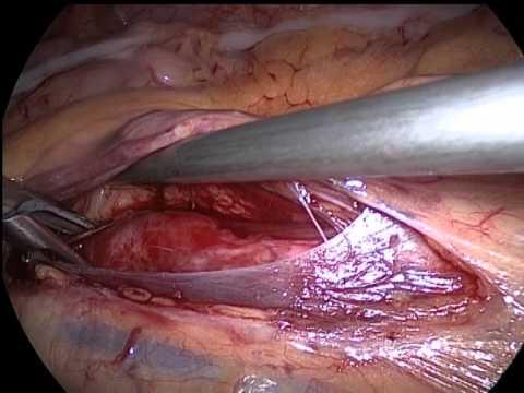 Laparoscopic ureterolithotomy  Лапароскопическая уретеролитотомия