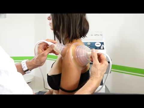 PPT/M bei Schulterproblemen v. HP T. Gurniak - Aus der Praxis für die Praxis