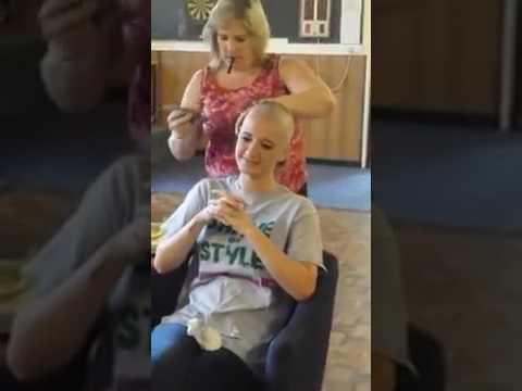 Bald teen with teen