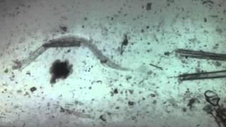 Szarvasmarha szalagféreg alkalmazkodása a parazitizmushoz