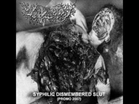 Vulvectomy - Molesting Dislimbed Whore