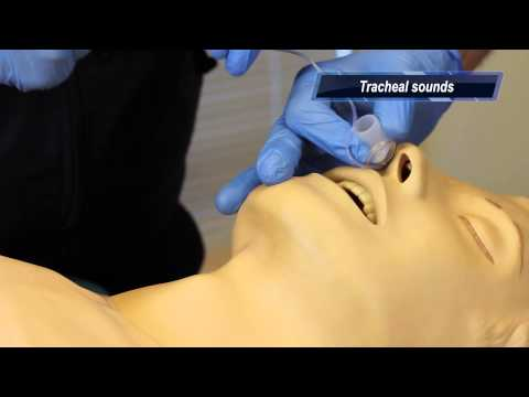 Close-up of nasal intubation procedure