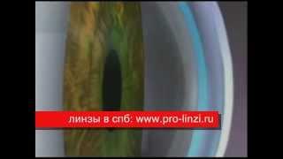 сухой глаз и контактные линзы(, 2010-11-07T18:44:08.000Z)