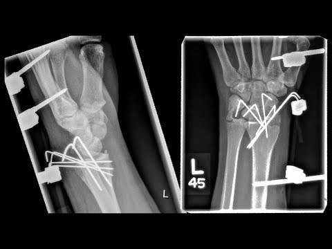 EDC Knife With Surgical Titanium Pins/Screws