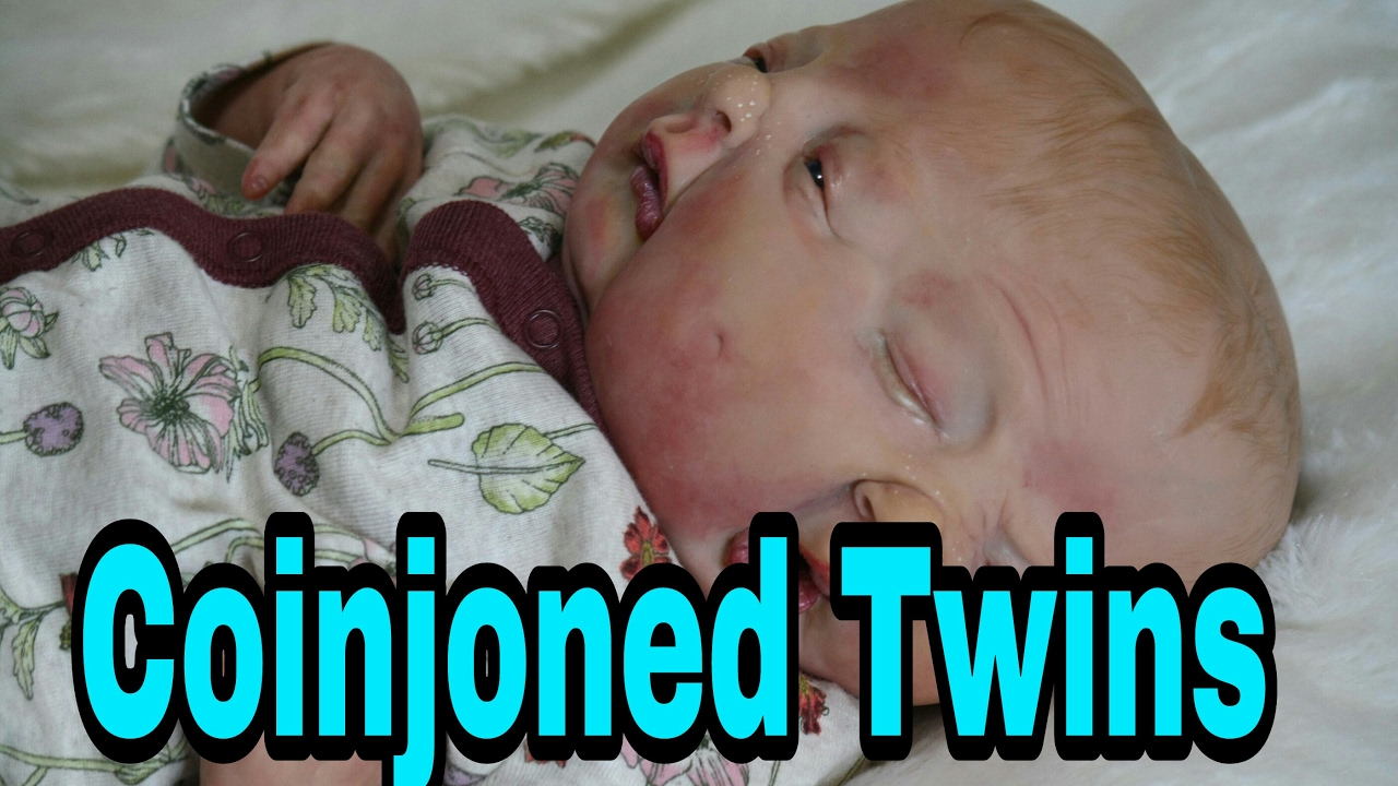 special box opening two faced baby twin baby girls born