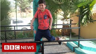 Syrian conflict: Helping children through the horror of bomb blasts - BBC News