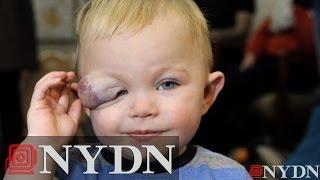 17-month-old's birthmark turns into tumor over eye