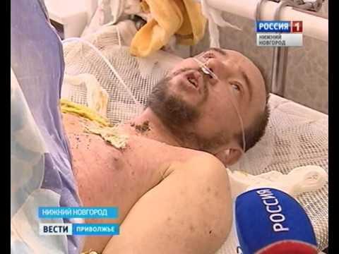 Уникальная методика пересадки кожи внедрена в Нижнем Новгороде
