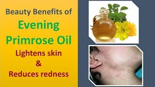 Beauty Benefits of Evening Primrose Oil | Lightens skin & Reduces redness