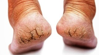 Cracked Heels Home Remedy | How to Get Rid of Cracked Feet At Home DIY  | SuperWowStyle Prachi