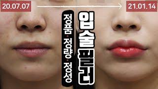 매력있는 입술 원한다면 입술필러 시술 영상 톡스앤필 강…