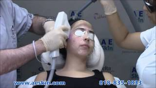 forever clear bbl acne laser treatment demonstration 1 a e skin encino ca 818 835 1833