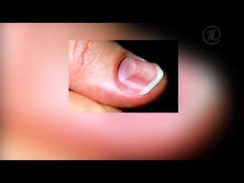 Ногти на руках неровные
