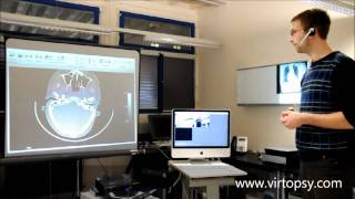 Virtopsy - Potential use of gesture control in medicine using the Microsoft Kinect camera