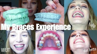 3 YEARS OF BRACES IN UNDER 30 MINS   VLOG-style experience / transformation glow-up