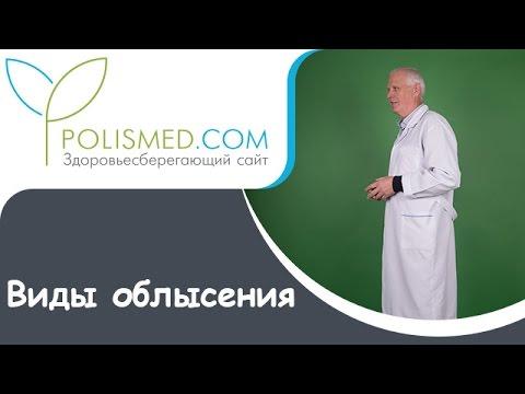 Гнездная алопеция : причины, симптомы, диагностика