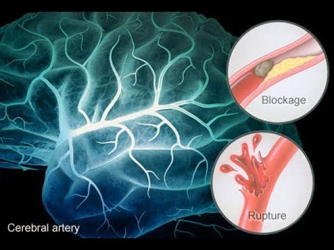 CVA (cerebro vasculair accident)