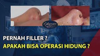 Operasi Hidung bisa menjadi alternatif bagi Beautylovers yang ingin memperbaiki tampilan hidung yang.