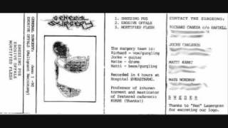 General Surgery - Erosive Offals (Malignant Necrotomy) Demo 1990