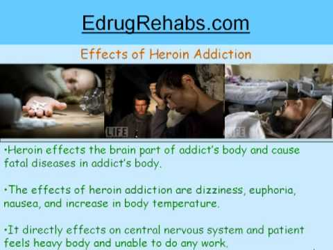 How to Find Best Drug Rehab Centers for Heroin Addiction