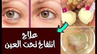 علاج انتفاخ تحت العين ٨ وصفات تم تجربتها ستحل المشكلة نهائي  عند النساء والرجال
