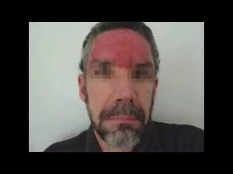 Cured Too A Cancer Story A Film By David Triplett - Skin Cancer
