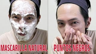 ¿Cómo eliminar el acné naturalmente? | Mascarilla Natural para espinillas