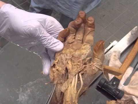 尺骨神経の解剖 Anatomy of the ulnar nerve at the wrist