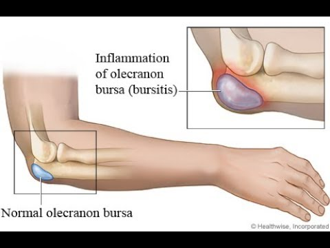 How it works: Carpal tunnel syndrome surgery.