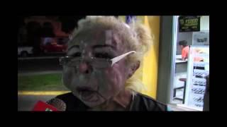 Se inyecta aceite de bebe en el rostro y queda deforme
