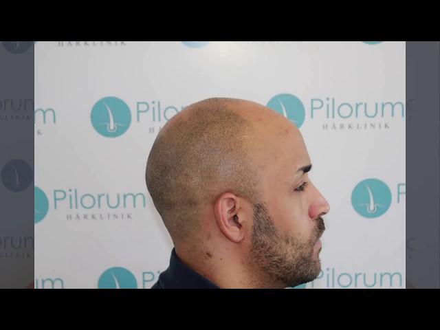 Philip fortæller sin historie.