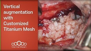 Vertical augmentation with Customized Titanium Mesh