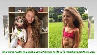 Cette fillette de 8 ans, née avec le cœur en dehors de sa poitrine espère une opération chirurgicale