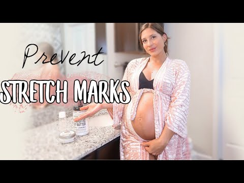 How to prevent stretch marks during pregnancy | 35 weeks pregnant and NO stretch marks!