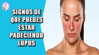 El lupus puede darte estos 11 signos de que puedes estarlo padeciendo