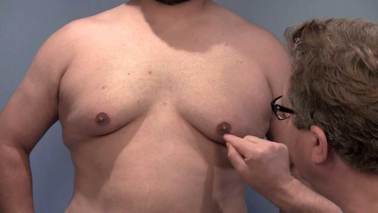 Connecticut gynecomastia