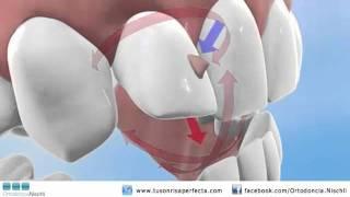 Ortodoncia Invisible - Invisalign® G4