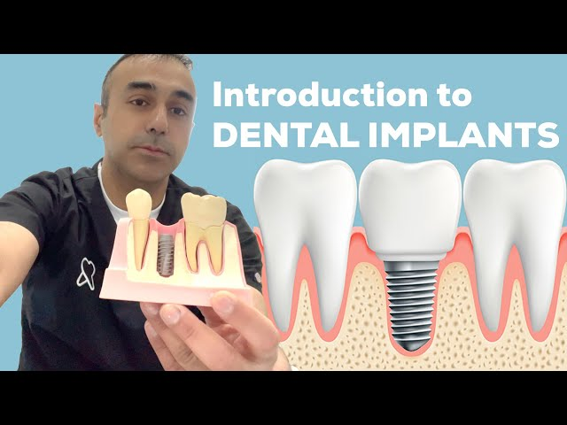 Introduction to Dental Implants | Ryton Dental | Dr Bilal Ahmad