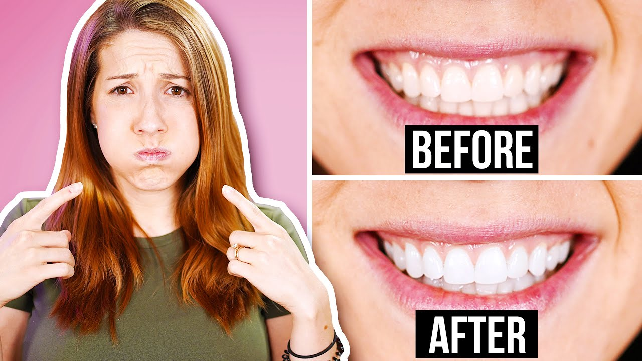 We Tried a Weird Ancient and Viral Beauty Hack To Whiten Teeth - Oil Pulling!