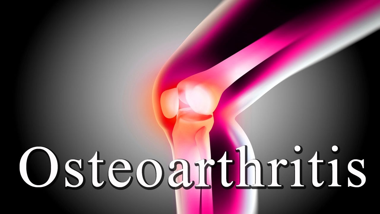 Image result for Best Remedies For Osteoarthritis
