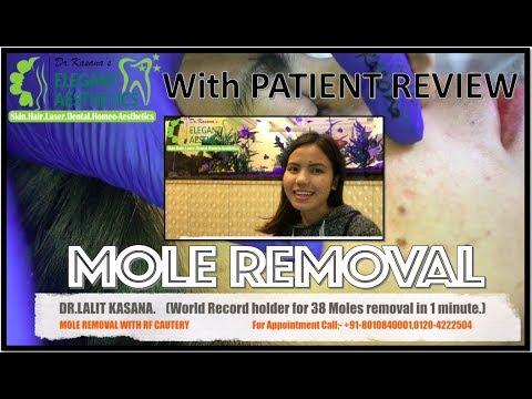 Dr Lalit Kasana Youtube